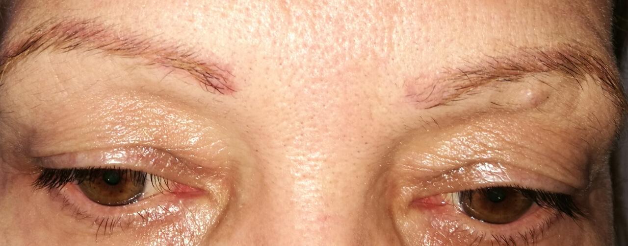 antes y después cejas micropigmentos cromatiz cromatiz.com