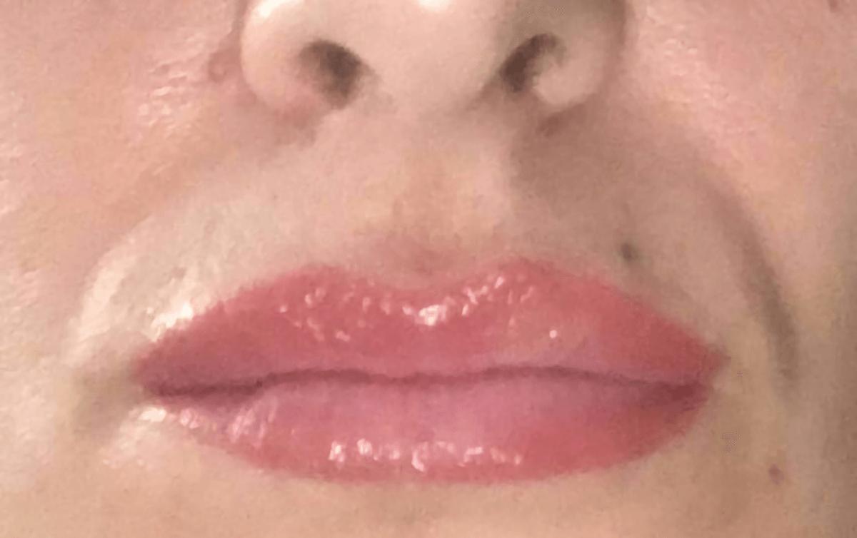 antes y después labios micropigmentos cromatiz cromatiz.com 02