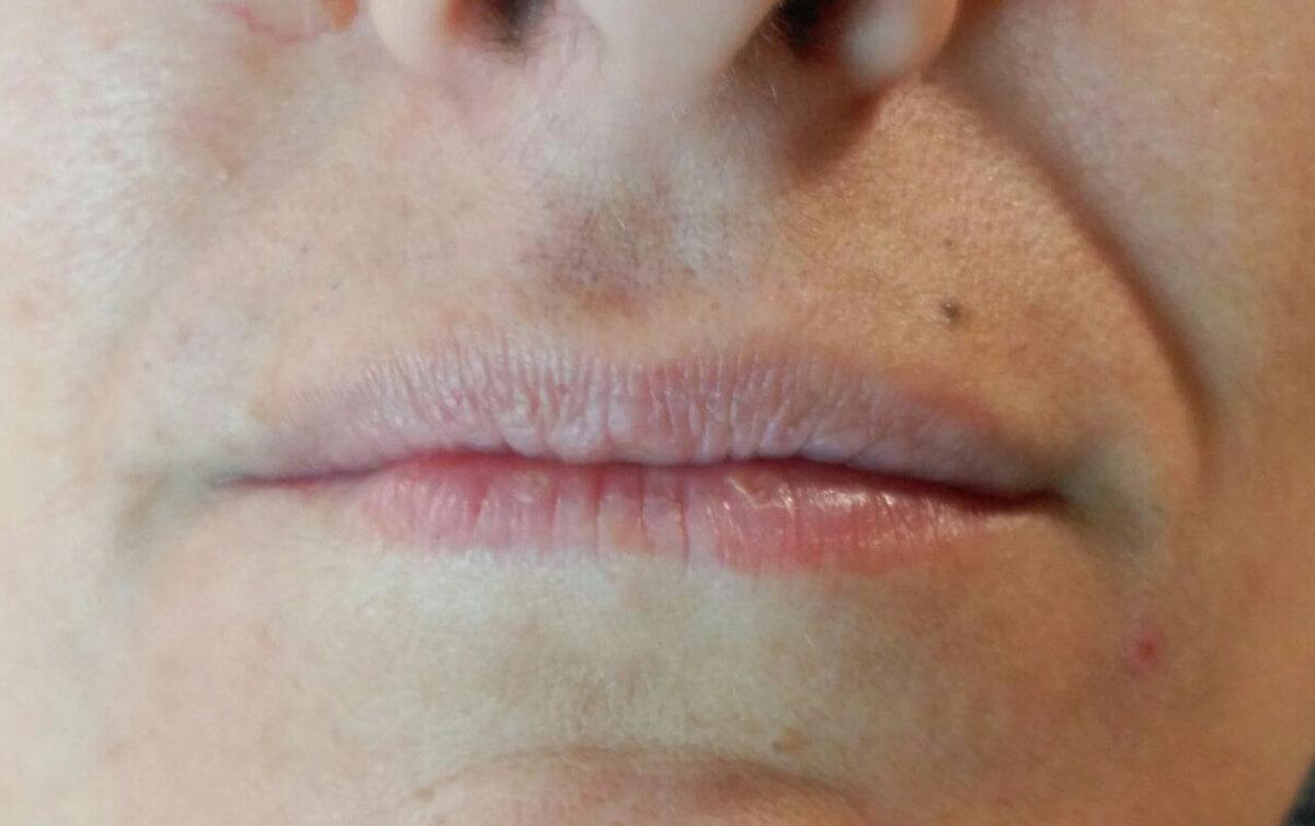 antes y después labios micropigmentos cromatiz cromatiz.com