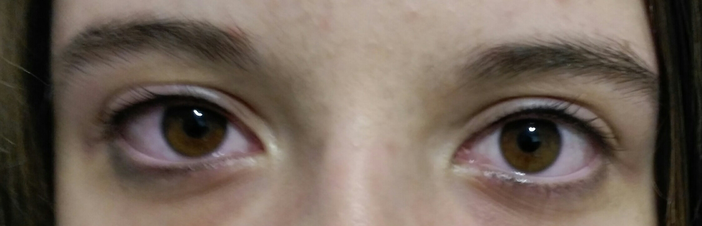 antes y después relleno de pestañas micropigmentos cromatiz cromatiz.com 02